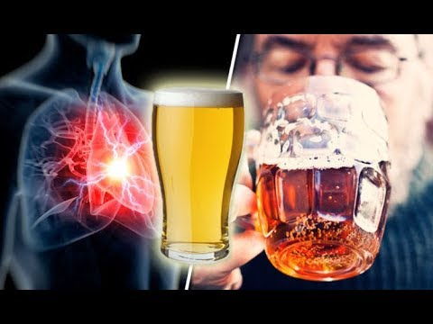How to PREVENT STROKE? Drink a Pint of BEER Everyday to PREVENT STROKE, HEART ATTACK & HEART DISEASE
