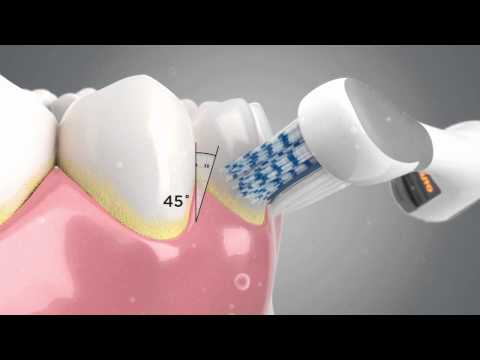 colgate - The Colgate® ProClinical® A1500 is the first electric toothbrush in the UK to automatically adjust to clean teeth and gums. Watch the video to see how the un...