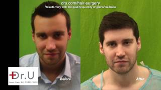 Video Best FUE Hairline Transplant In Los Angeles For Forehead Reduction Using Dr UGraft MP3, 3GP, MP4, WEBM, AVI, FLV Juli 2018