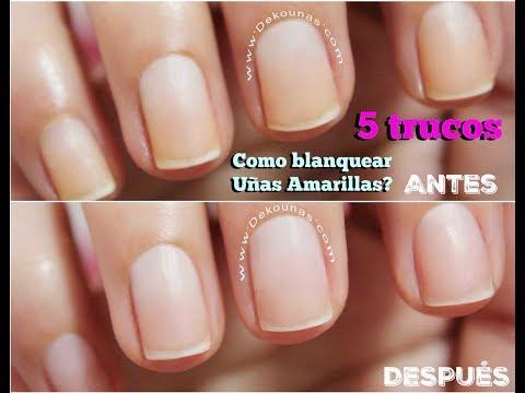 Videos de uñas - Clase #5 Como Blanquear Uñas Amarillas  Deko Uñas