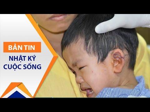 Bé trai 3 tuổi bị tôn cứa đứt tai | VTC1 - Thời lượng: 57 giây.