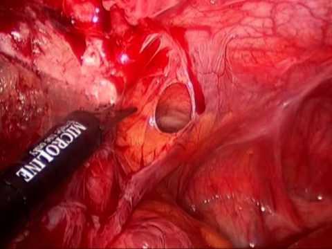 Laparoscopic adhesiolysis for acute small bowel obstruction