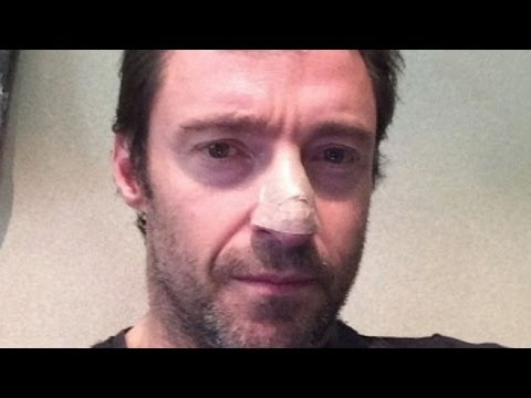 hugh - The actor shared a picture of himself following treatment on Instagram.