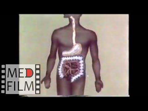 Хирургическое лечение ожоговых стриктур пищевода  © Surgical treatment of burn esophageal strictures