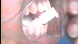 Periapical Radiography: Long Cone Paralleling Technique