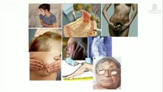 Enfoque del paciente con Hipotiroidismo