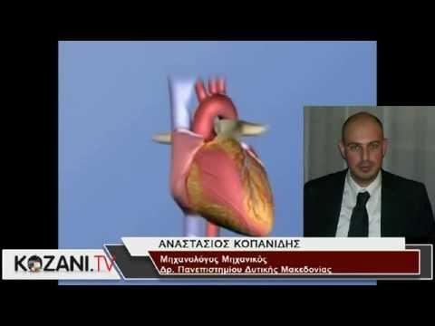 """Δόκτωρας του Πανεπιστημίου Δυτικής Μακεδονίας μέλος ελληνικής ερευνητικής ομάδας που εξήγαγε μέθοδο εκτίμησης σε ασθενείς """"ύποπτους"""" για έμφραγμα. Τι δηλώνει για την έρευνα στο www.kozani.tv (Video)"""