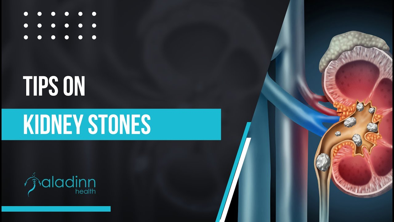 Dr. M. Roychowdhury's Institute of Urology & Tips on Kidney Stones