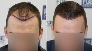 Video FUE Hair Transplant (2700 Grafts in NW-Class lll-A) Dr. Juan Couto - FUEXPERT CLINIC- Madrid, Spain MP3, 3GP, MP4, WEBM, AVI, FLV November 2018