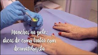 Manchas na pele: dicas de como tratar com dermatologista