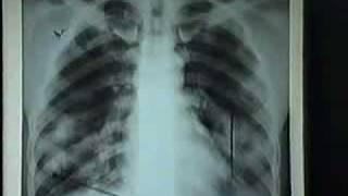 Video hình ảnh thâm nhiễm Phổi Mau Bay trên Phim XQuang.