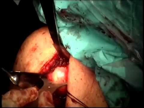 Stemless Total Shoulder Resurfacing with HemiCAP OVO