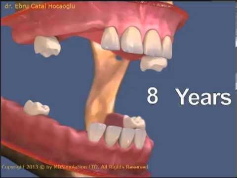 Hangi yaşlarda hangi dişler tamamlanır?