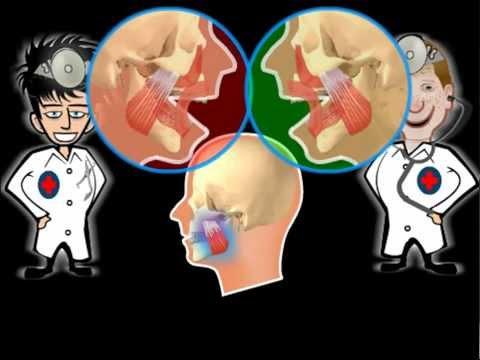 Краниомандибулярная дисфункция