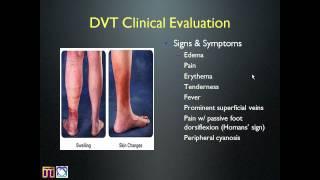 Internal Medicine Grand Rounds -- Deep Vein Thrombosis.mp4