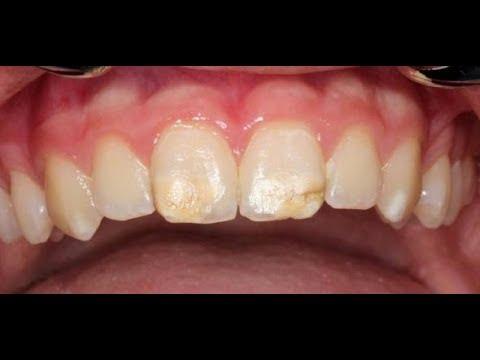 Kreidezähne: Zahnärzte warnen vor neuer Volkskrankh ...
