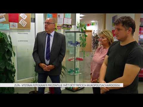 TVS: Deník TVS 11. 10. 2017
