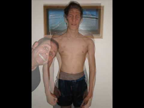 My 1 year muscle gain and weight gain body transformation before and after