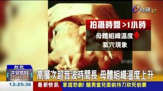 嬰兒超音波3D照美FDA示警:恐危害健康