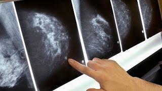 علاج جديد لسرطان الثدي يغني عن استخدام الكيمياوي