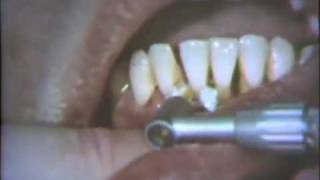 Initial Or Hygiene Phase Of Periodontal Therapy