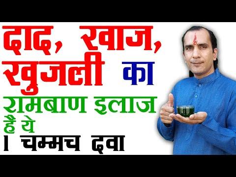 7 Eczema Treatment Home Remedies - 1 दिन में एक्जिमा ठीक करने के इलाज  Eczema Treatment in Hindi (видео)