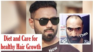 Video Hair Transplant in India (2018) || Diet and care for healthy Hair growth MP3, 3GP, MP4, WEBM, AVI, FLV November 2018