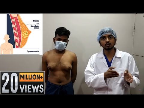 Grade 3 gynecomastia its diagnosis and treatment