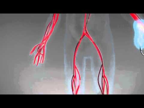 Non Invasive Cardiac System (NICaS)™