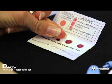 How to Complete Your Home Vitamin D Blood Spot Test