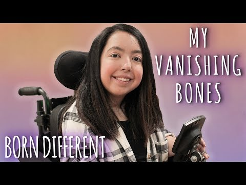 The Teenager With Vanishing Bones | BORN DIFFERENT
