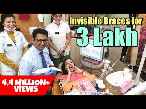 Getting Invisalign Treatment in India | Invisible Braces- Process & Cost