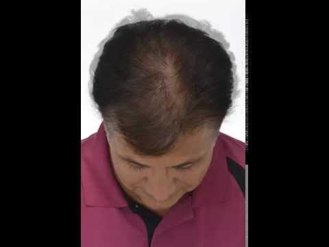 Duele la piel sobre la cima cae el cabello