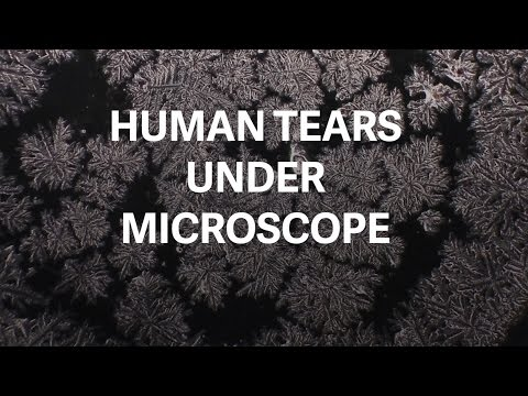 Ever Wondered How Human Tears Would Look Like Under Microscope?