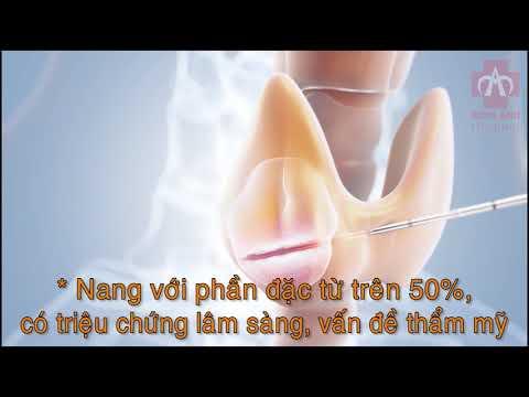 Điều trị u tuyến giáp bằng sóng cao tần RFA