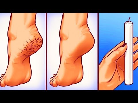 25 SIMPLE YET GENIUS BODY HACKS