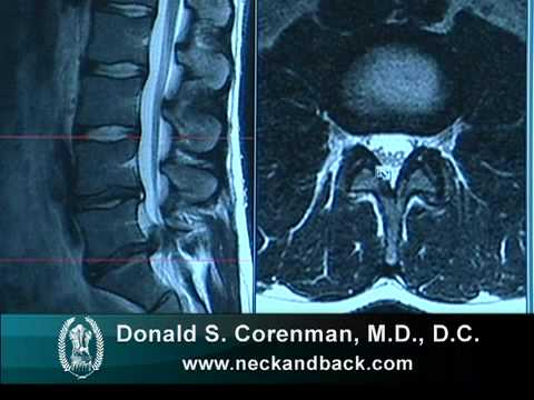 How to Read a MRI of a Lumbar Herniated Disc | Lower Back Pain | Colorado Spine Surgeon