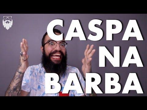 #17 - 11 DICAS CONTRA A CASPA NA BARBA