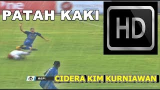 Video Kim Jeffrey Kurniawan Cidera Parah Patah kaki di laga Persija VS Persib [ 3November 2017 ] MP3, 3GP, MP4, WEBM, AVI, FLV Juli 2018