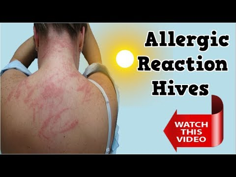 Allergic Reaction Hives, Allergic Reaction Rash, What Causes Hives, Allergic Reaction To Penicillin