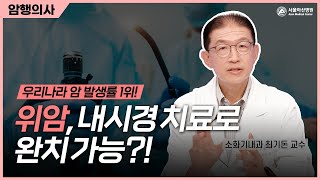 위암, 내시경 치료로 완치할 수 있다?! 미리보기