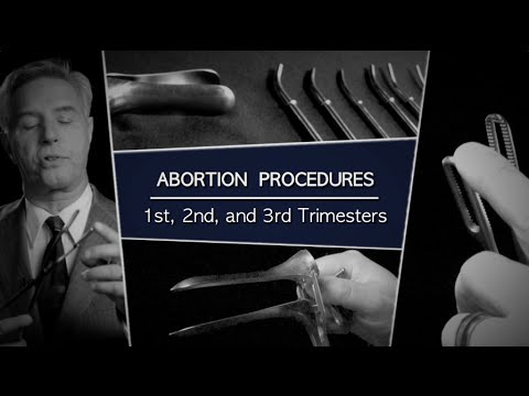 Abortion Procedures: 1st, 2nd, and 3rd Trimesters (видео)