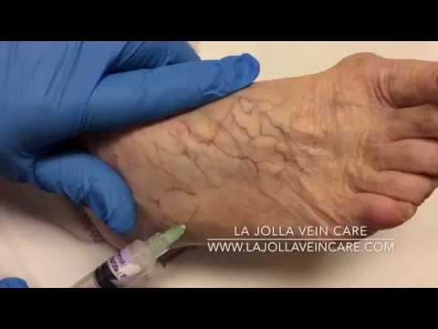 Sclerotherapy of Spider Veins on the Foot