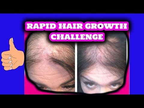 Thin and Bald  Hair Growth Challenge   3 Ingredients