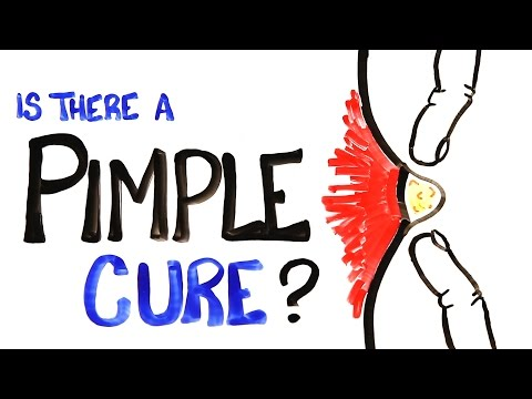 Is There A Pimple Cure?