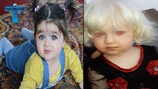 Top 10 Most Unusual & Odd Babies Around The World - Unbelievable Amazing Kids
