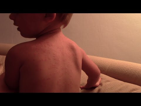Аллергия на солнце у ребенка. Фотодерматит (фотодерматоз). Наш опыт