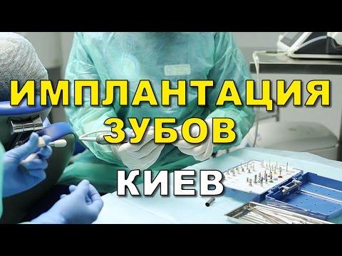 Имплантация зубов Киев. Стоматология Люми-Дент, Киев