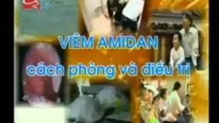 Bệnh Viêm Amidan
