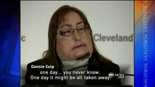 Face Transplant Patient Goes Public